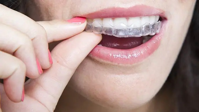 Is There a Painless and Affordable Way of Strengthening Teeth?